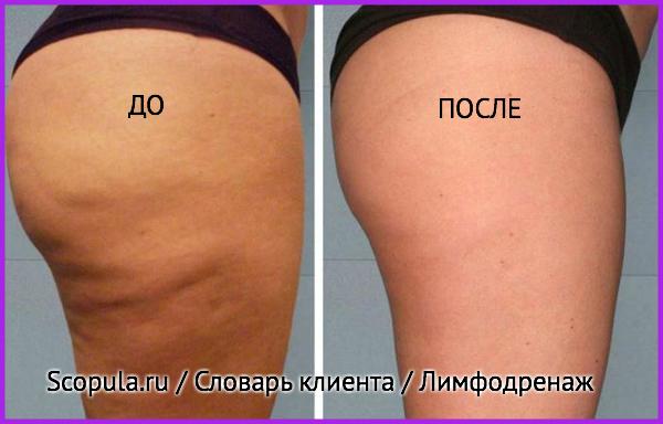 лимфодренаж до и после