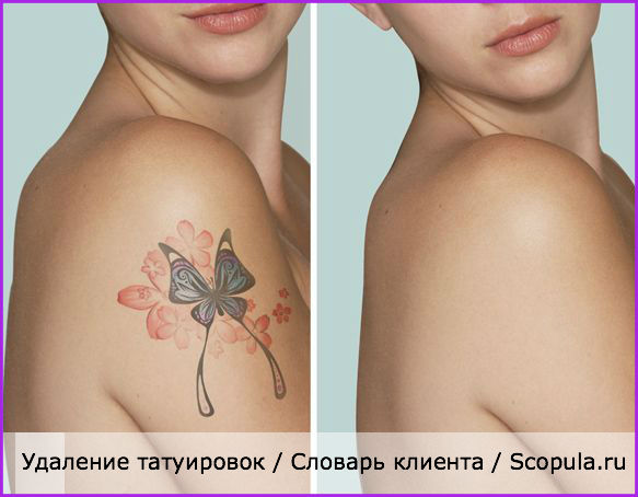 оборудование для удаления татуировок